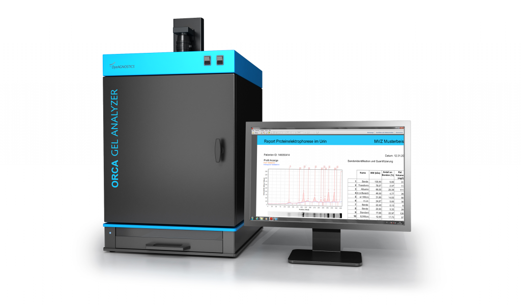 Image ORCA Gel Analyzer: Walk away protein analysis, high thruput, user-independet results